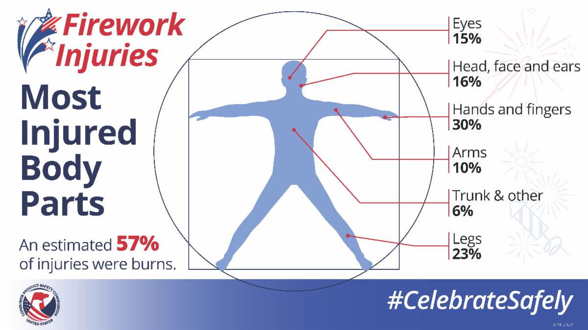 firework-injuries-2020_body-infographic